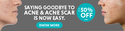 UPTO 50% Off on Acne & Acne Scar Treatment